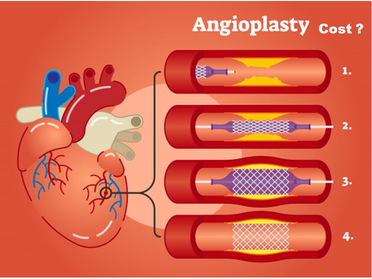 angioplasty cost in Hyderabad