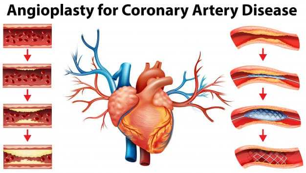 Angioplasty in Hyderabad