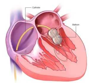 Mitral valve repair in Hyderabad